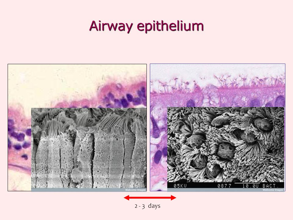 Airway epithelium days
