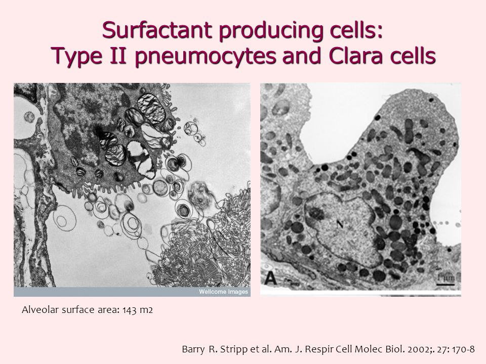 Surfactant producing cells: Type II pneumocytes and Clara cells