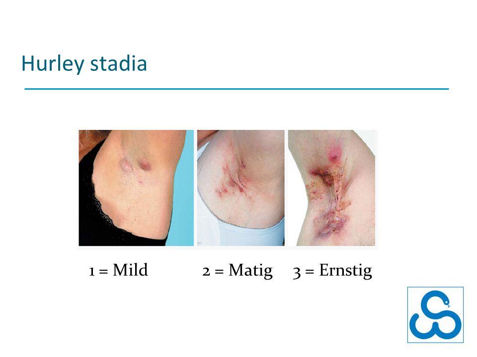 Hurley stadia 1 = Mild 2 = Matig 3 = Ernstig
