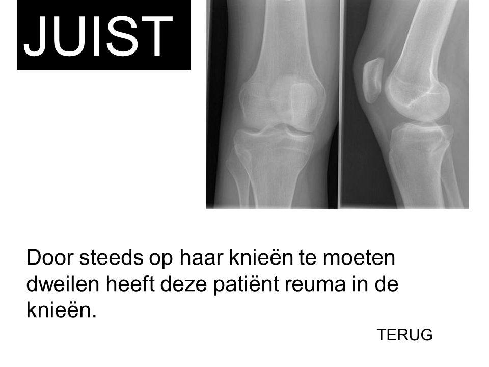 JUIST Door steeds op haar knieën te moeten dweilen heeft deze patiënt reuma in de knieën. TERUG