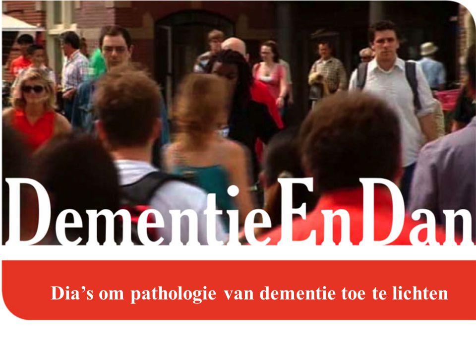 Dia's om pathologie van dementie toe te lichten