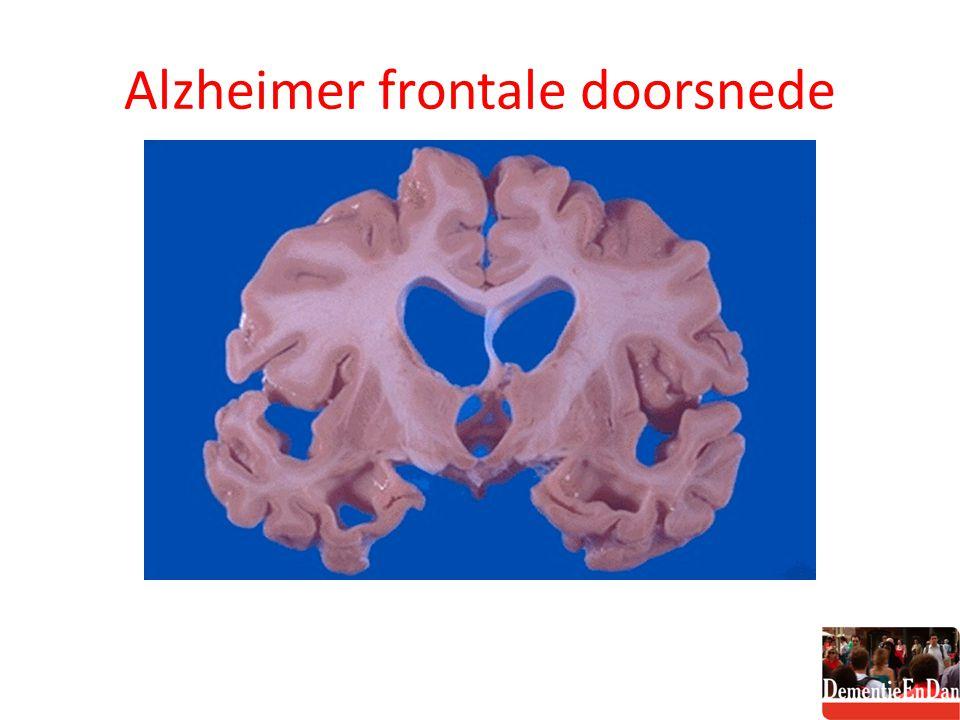 Alzheimer frontale doorsnede
