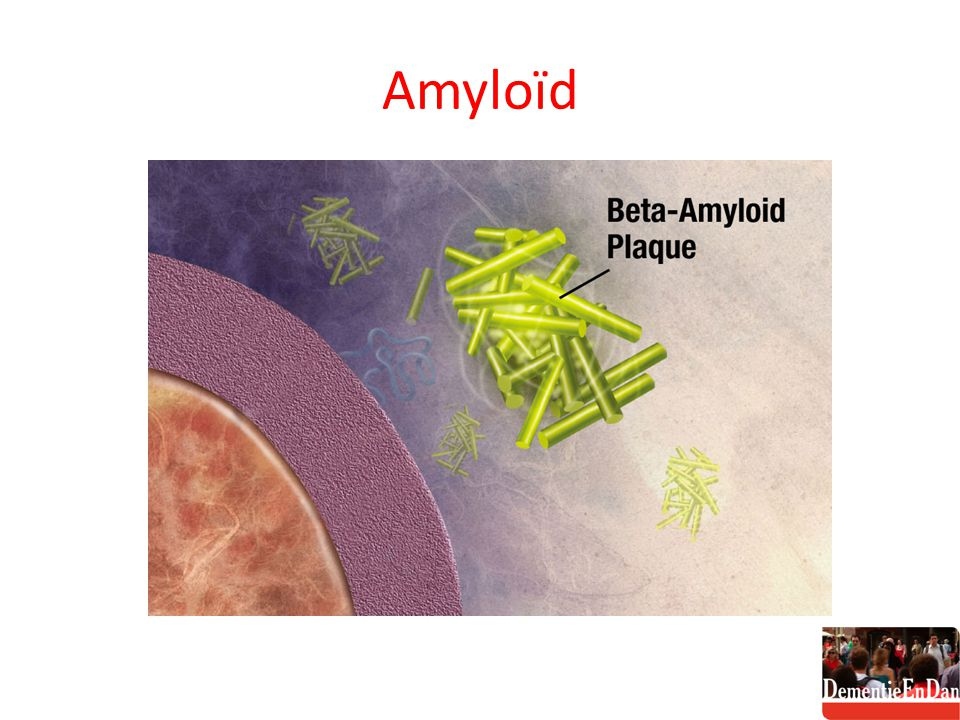 Amyloïd http://commons.wikimedia.org/wiki/File:Amyloid_03big1.jpg
