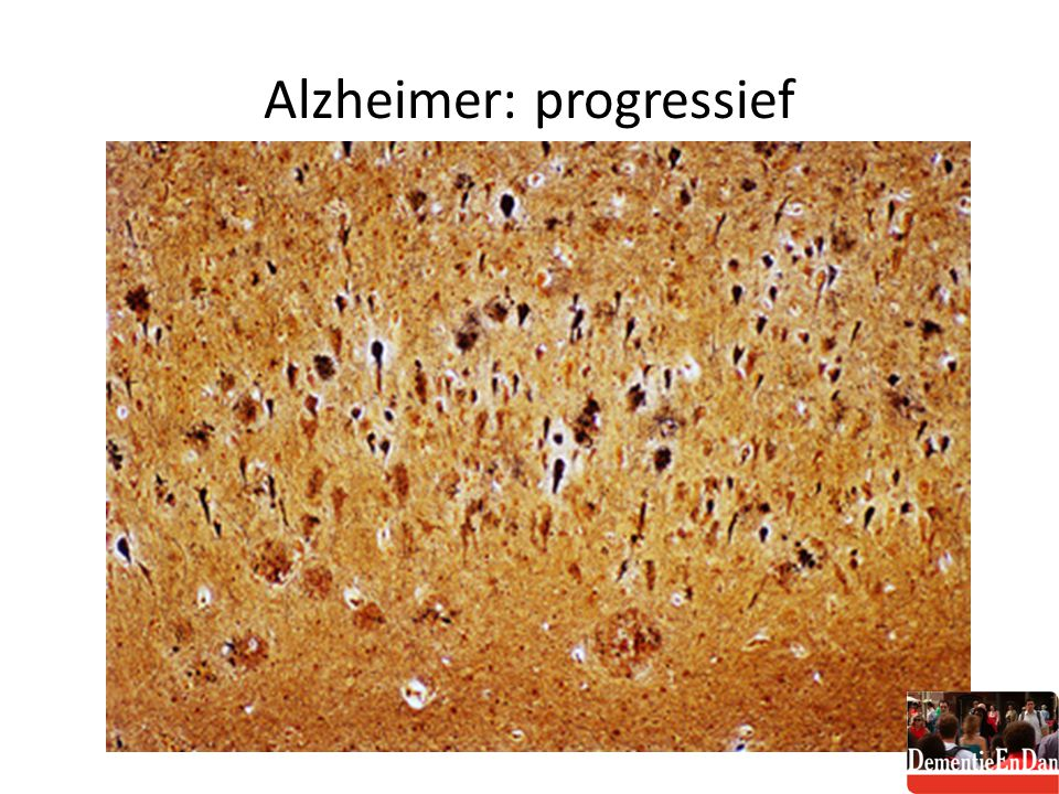 Alzheimer: progressief