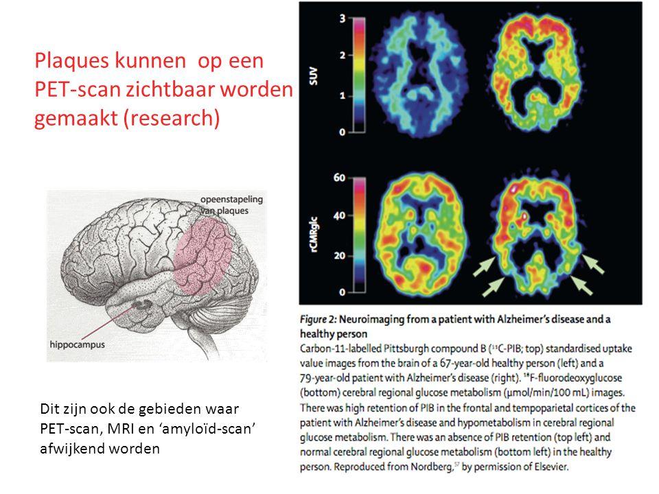 Plaques kunnen op een PET-scan zichtbaar worden gemaakt (research)