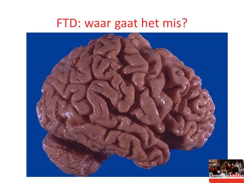 FTD: waar gaat het mis