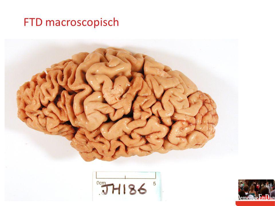 FTD macroscopisch http://www.neuroscience.cam.ac.uk/uploadedFiles/jxuereb_phpWjayhZ.jpg