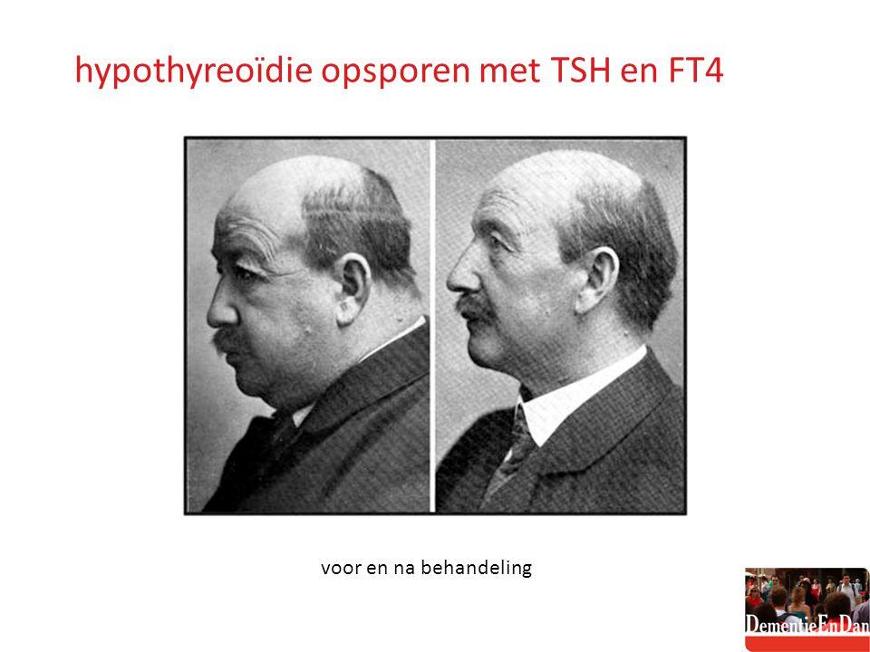 hypothyreoïdie opsporen met TSH en FT4