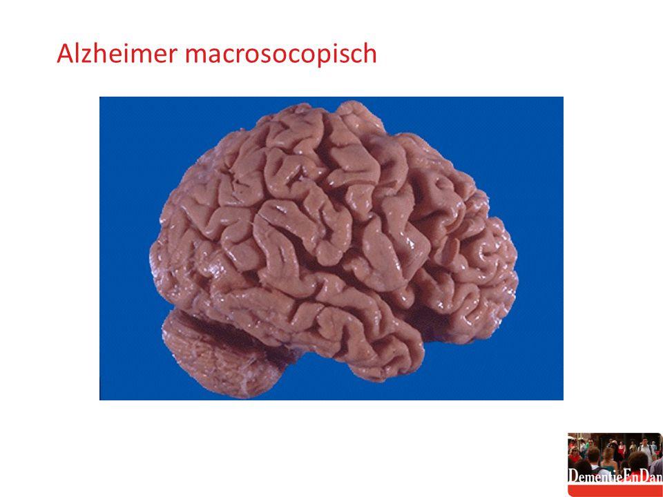 Alzheimer macroscopisch