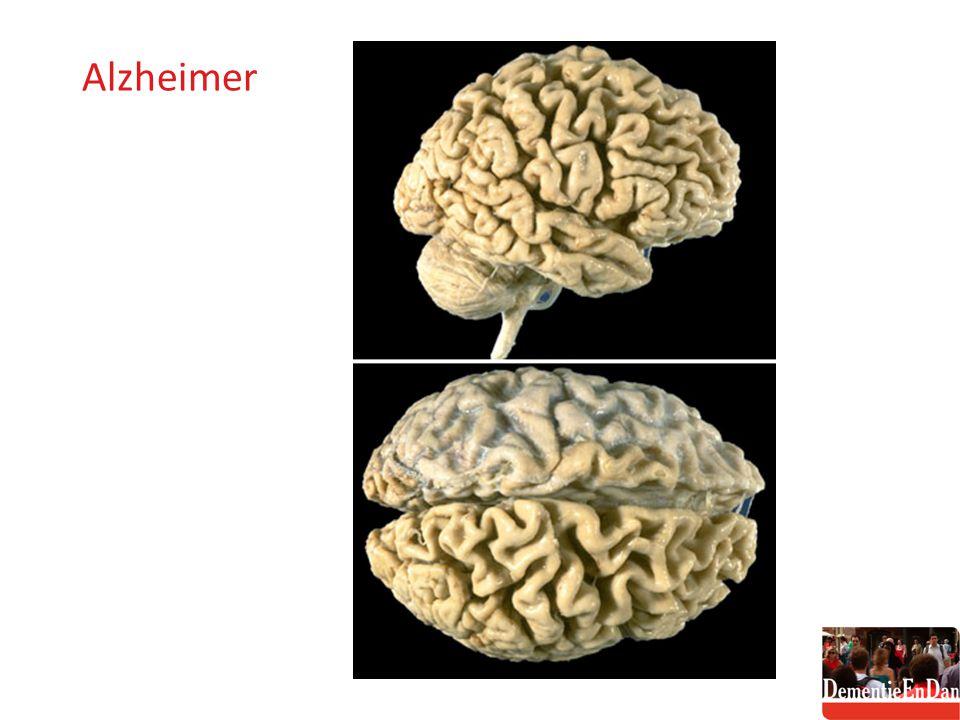 Alzheimer macroscopisch 2