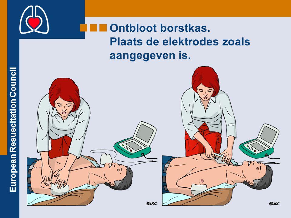 Ontbloot borstkas. Plaats de elektrodes zoals aangegeven is.