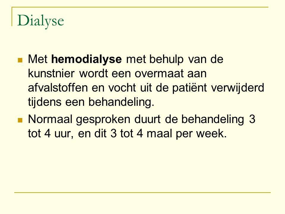 Dialyse Met hemodialyse met behulp van de kunstnier wordt een overmaat aan afvalstoffen en vocht uit de patiënt verwijderd tijdens een behandeling.