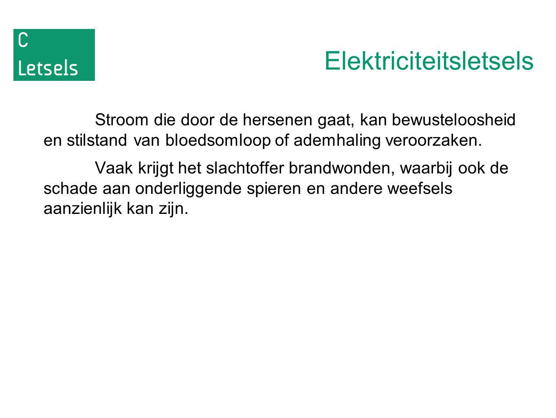 Elektriciteitsletsels
