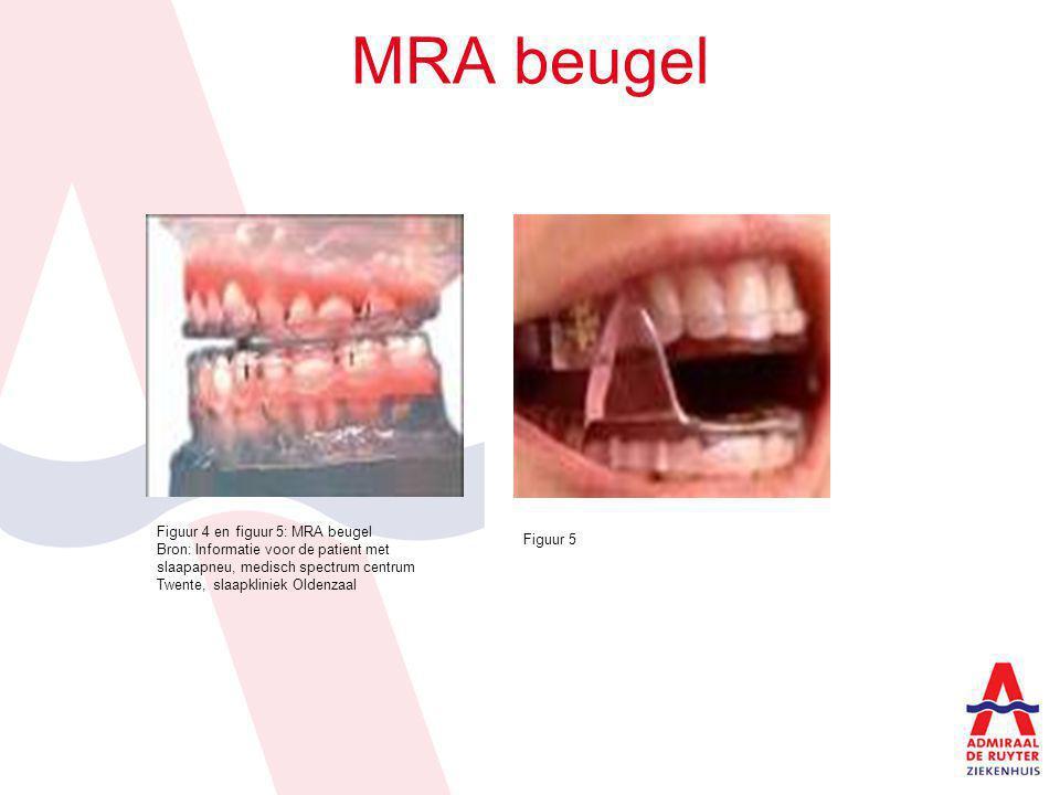 MRA beugel Figuur 4 en figuur 5: MRA beugel