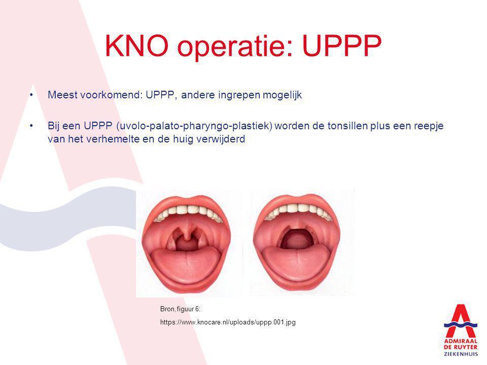 KNO operatie: UPPP Meest voorkomend: UPPP, andere ingrepen mogelijk