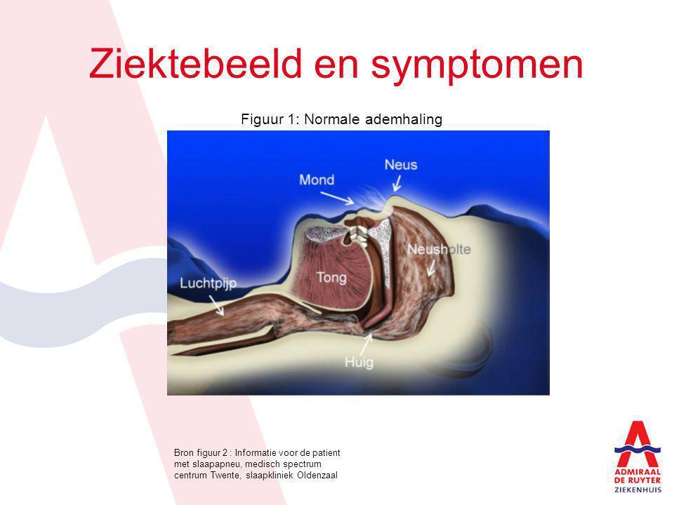 Ziektebeeld en symptomen Figuur 1: Normale ademhaling