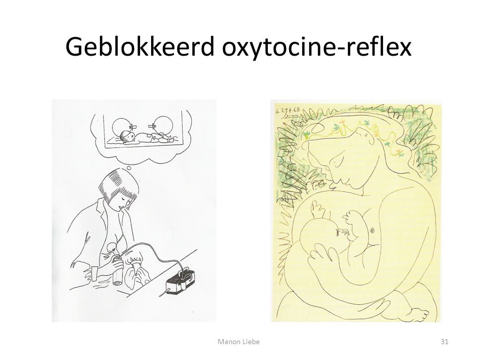 Geblokkeerd oxytocine-reflex