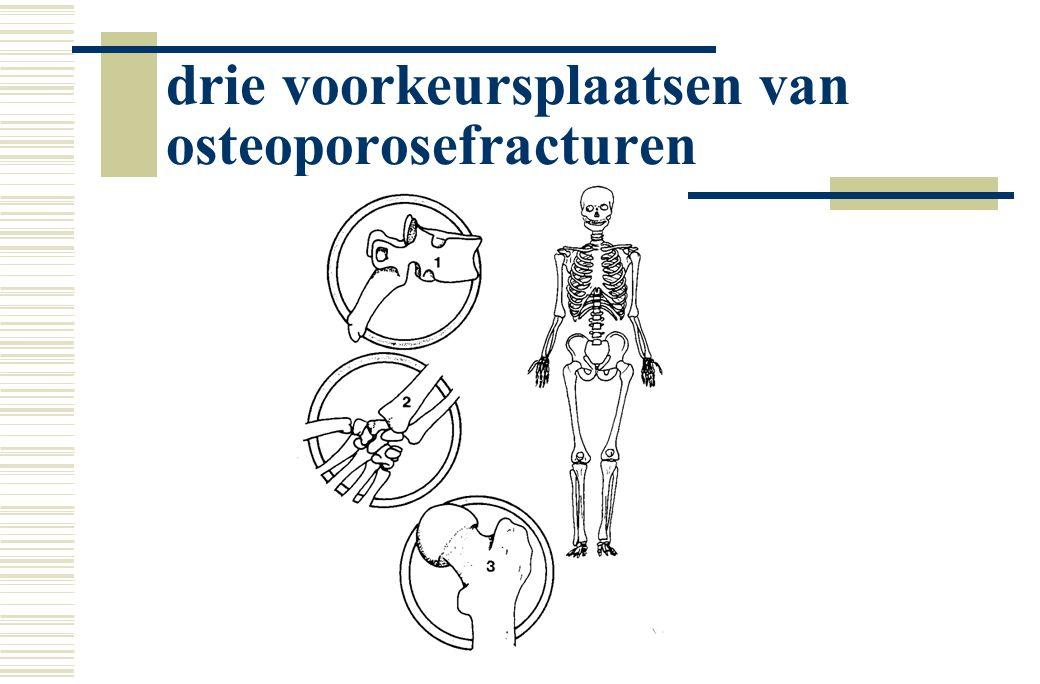 drie voorkeursplaatsen van osteoporosefracturen