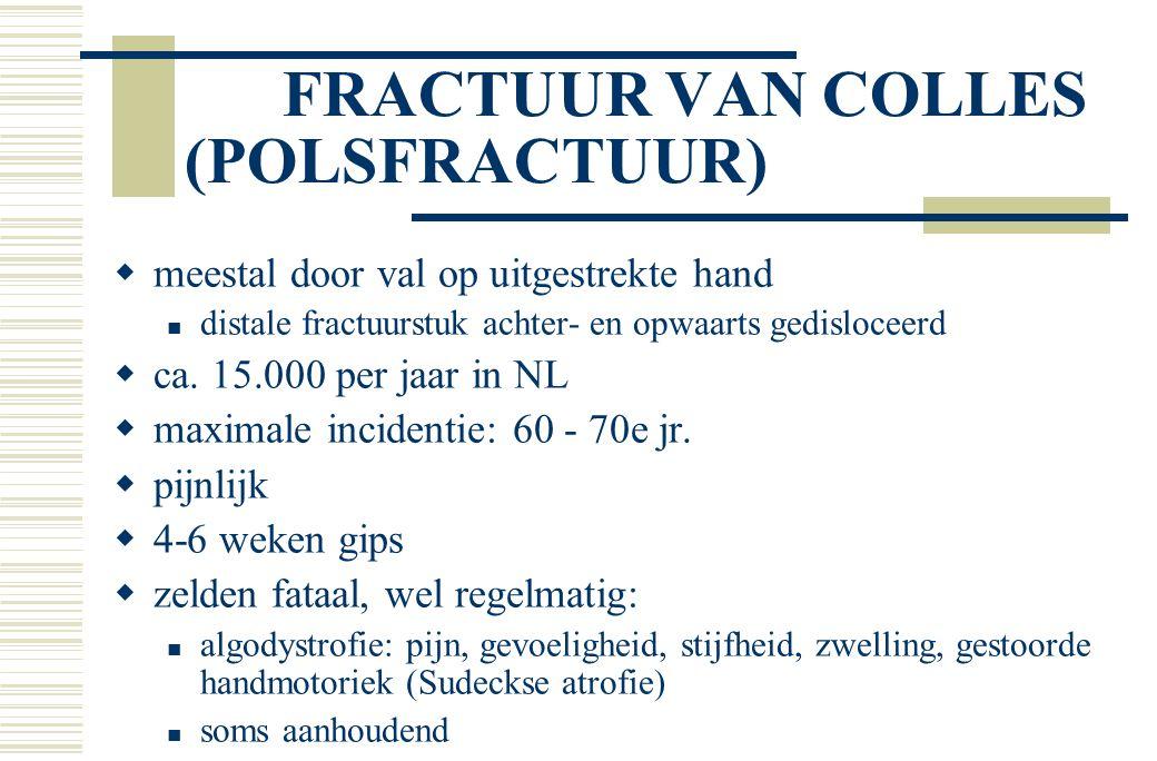 FRACTUUR VAN COLLES (POLSFRACTUUR)