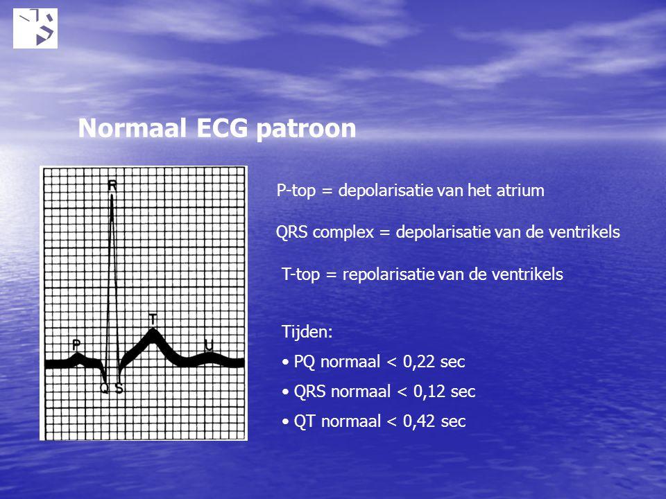 Normaal ECG patroon P-top = depolarisatie van het atrium