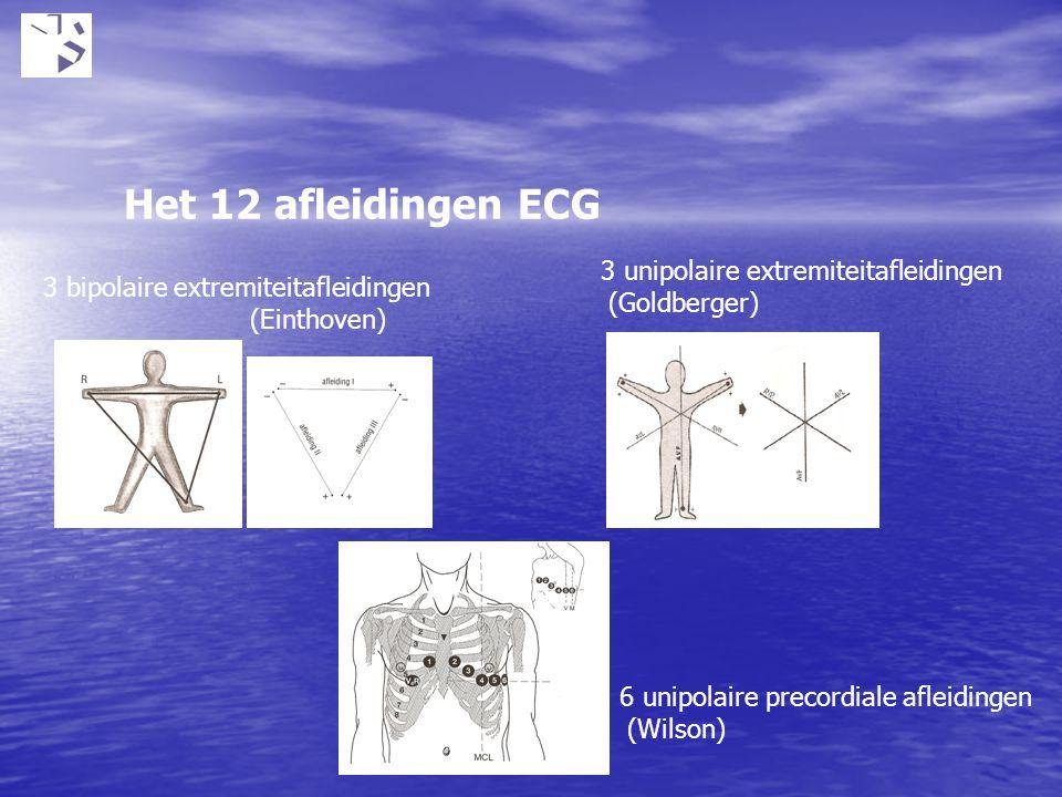 Het 12 afleidingen ECG 3 unipolaire extremiteitafleidingen