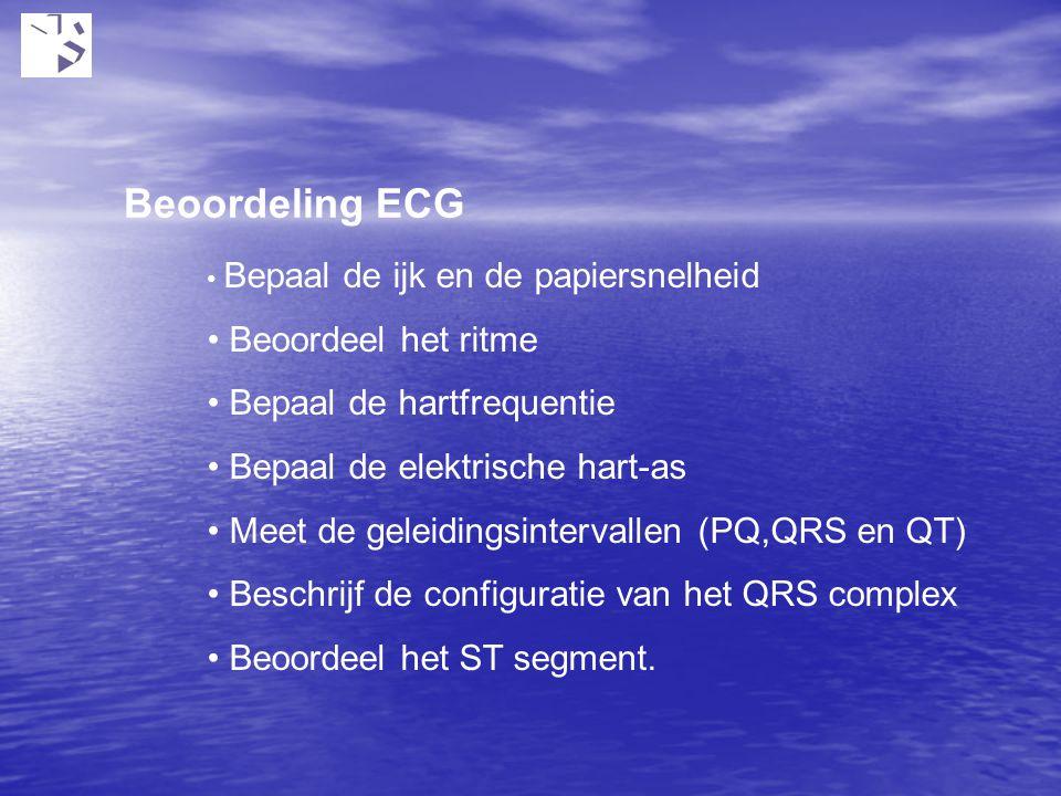 Beoordeling ECG Beoordeel het ritme Bepaal de hartfrequentie