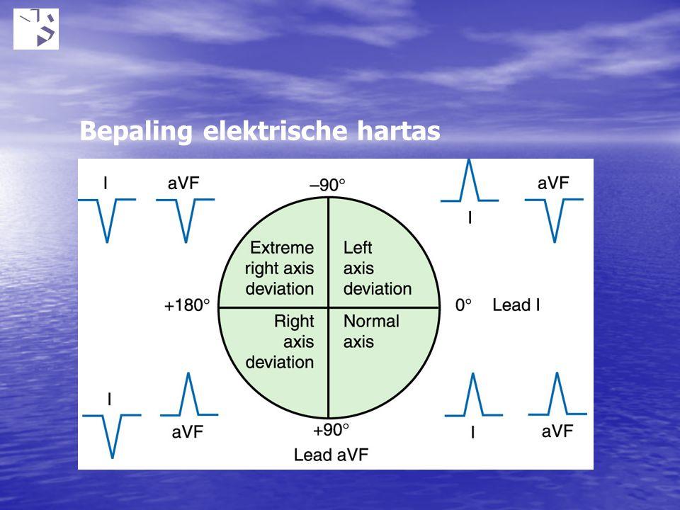 Bepaling elektrische hartas
