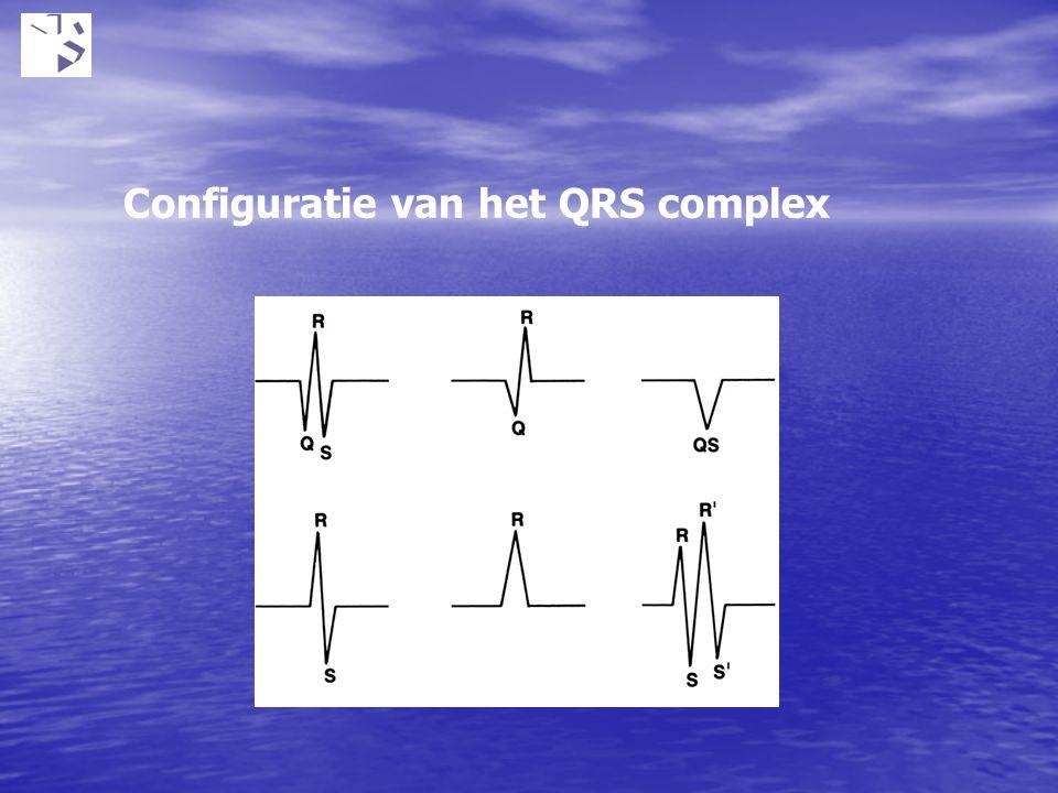 Configuratie van het QRS complex