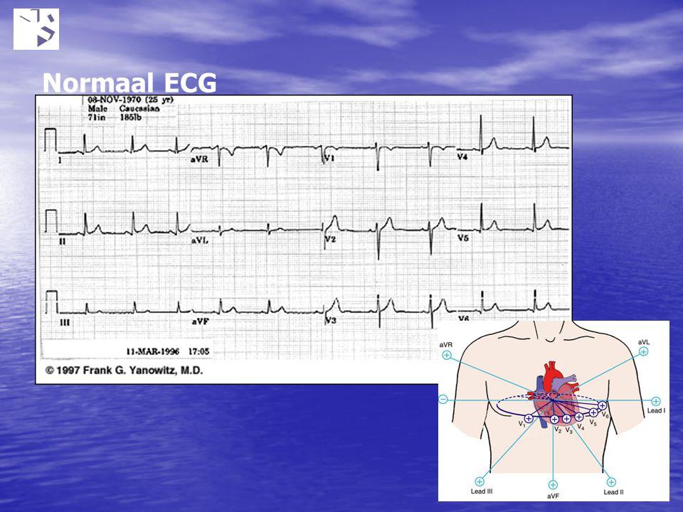 Normaal ECG