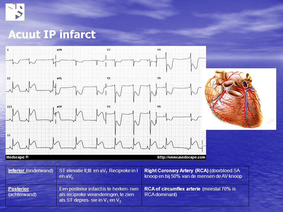 Acuut IP infarct Inferior (onderwand)