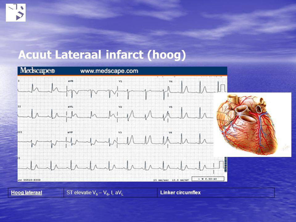 Acuut Lateraal infarct (hoog)