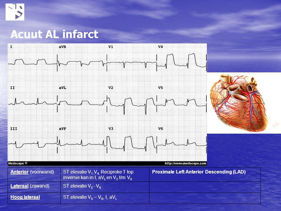 Acuut AL infarct Ontstaat door nierfunctie stoornissen bijv tgv medicatie gebruik. Bij kalium boven 5.5 mmol kunnen hartritmestoornissen voorkomen.