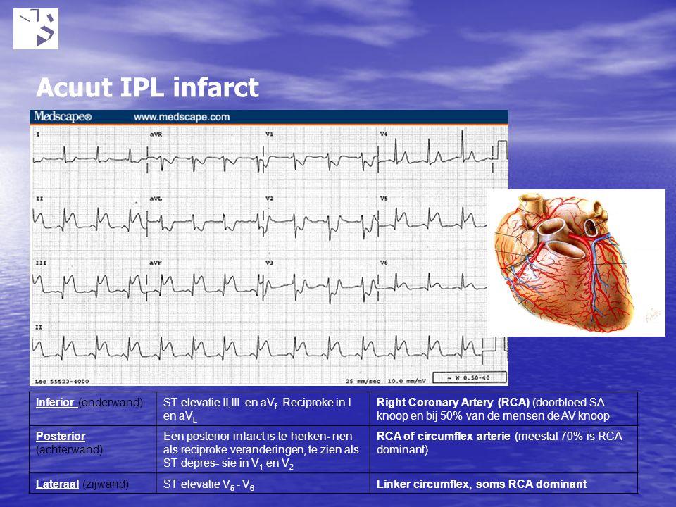 Acuut IPL infarct Ontstaat door nierfunctie stoornissen bijv tgv medicatie gebruik. Bij kalium boven 5.5 mmol kunnen hartritmestoornissen voorkomen.