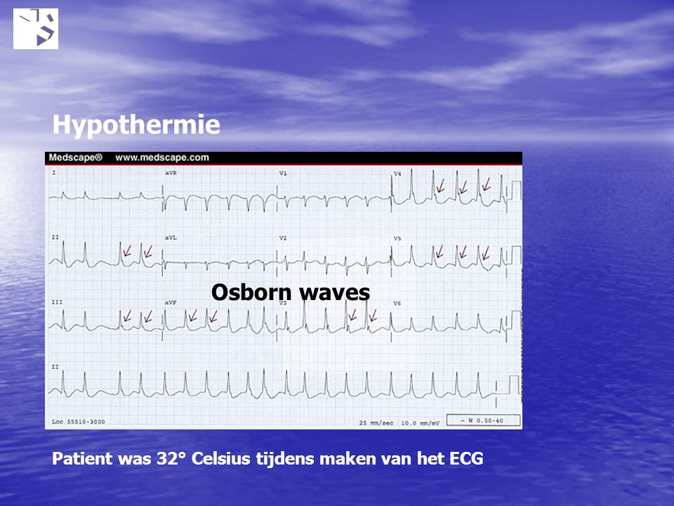 Hypothermie Osborn waves