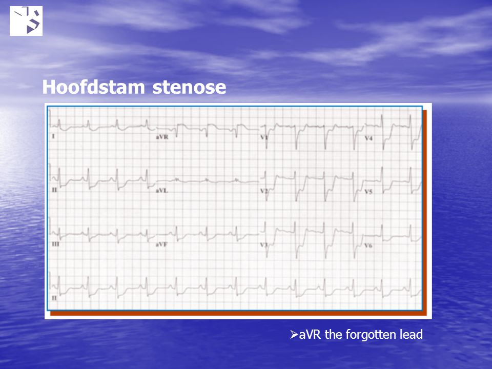 Hoofdstam stenose aVR the forgotten lead