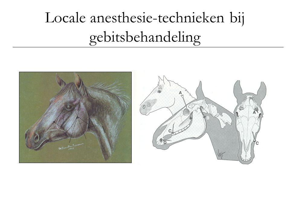 Locale anesthesie-technieken bij gebitsbehandeling