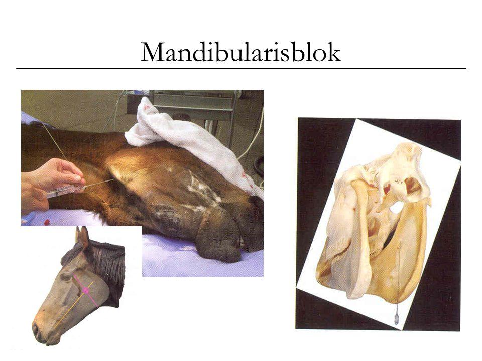 Mandibularisblok Mandibularisblok wordt in de literatuur meestal het alveolaris inferior blok genoemd.