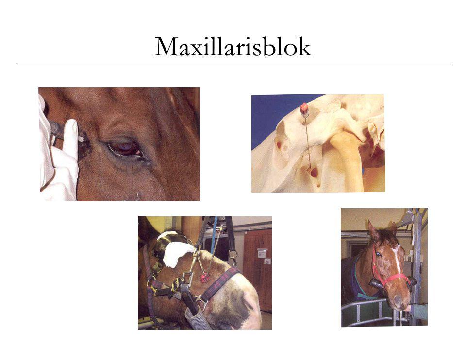 Maxillarisblok