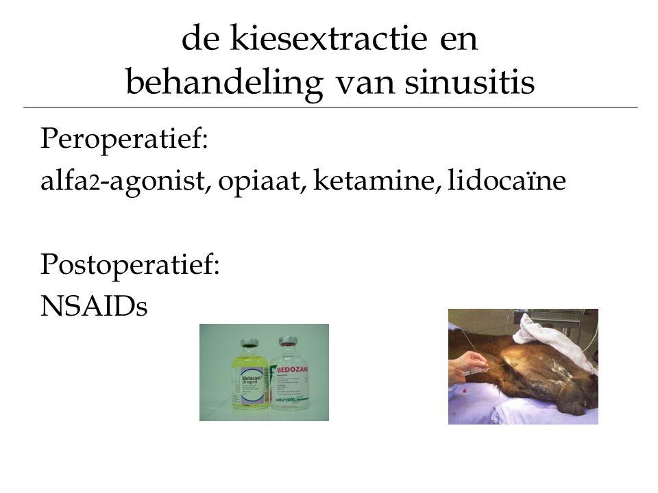 de kiesextractie en behandeling van sinusitis