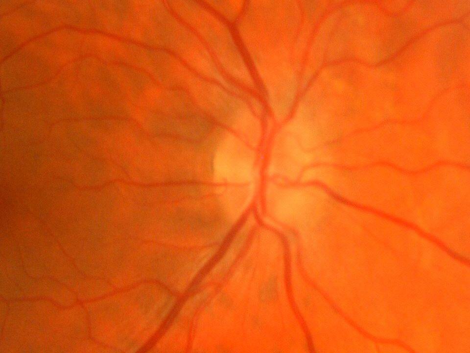 Dit is een mooie foto van een gezond oog