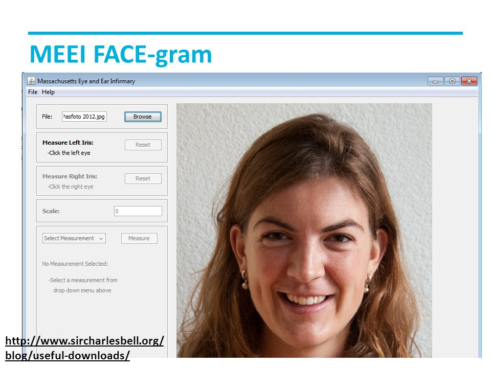 MEEI FACE-gram http://www.sircharlesbell.org/blog/useful-downloads/