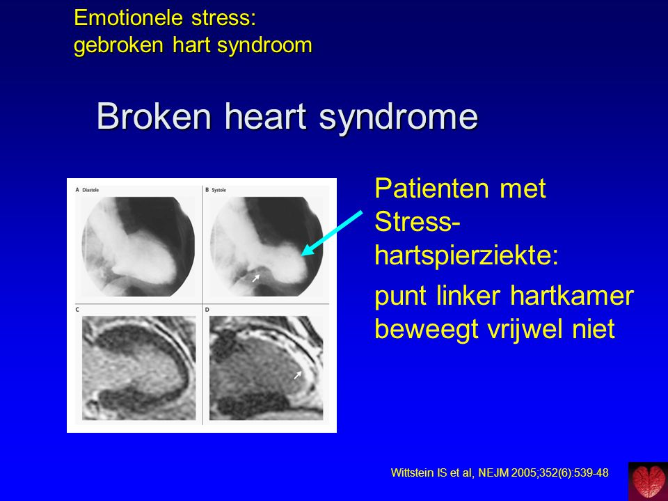 Emotionele stress: gebroken hart syndroom