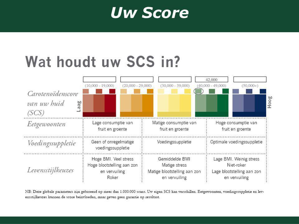 Uw Score 16