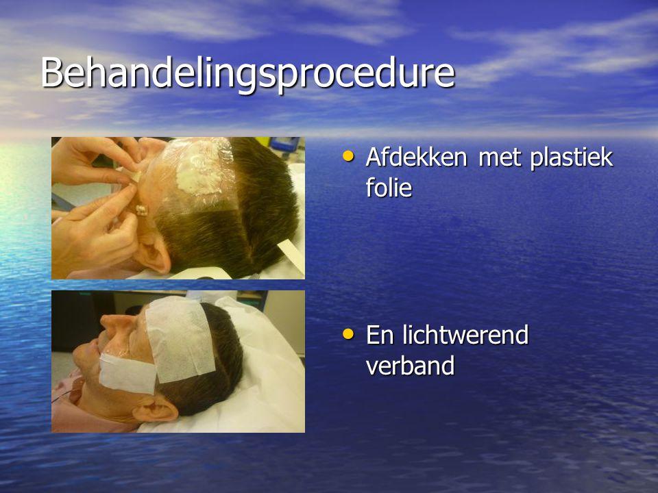 Behandelingsprocedure