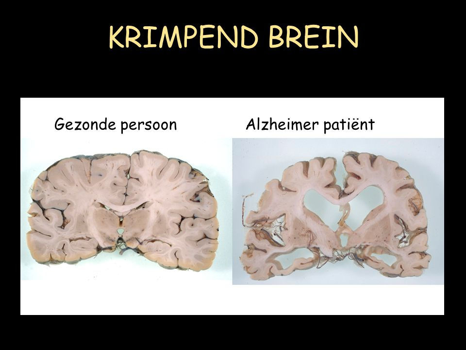 KRIMPEND BREIN Gezonde persoon Alzheimer patiënt