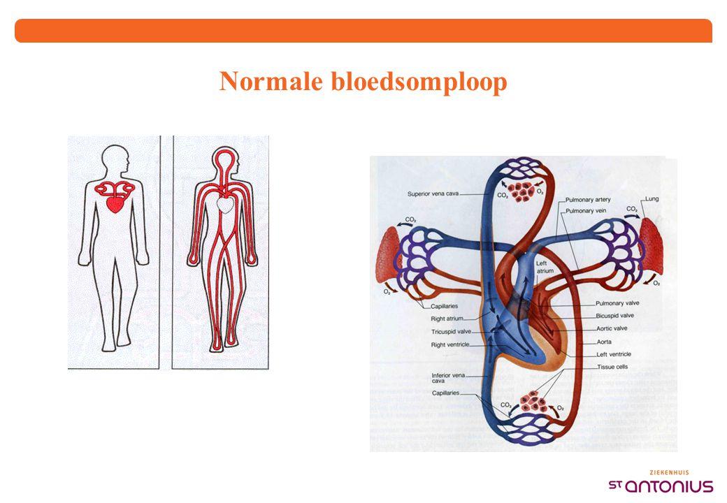 PAVM en neurologische complicaties in ROW 1,2,3,4