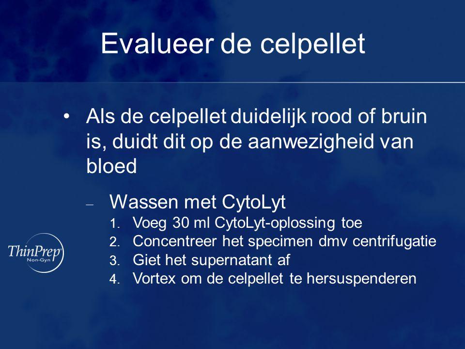Evalueer de celpellet Als de celpellet duidelijk rood of bruin is, duidt dit op de aanwezigheid van bloed.