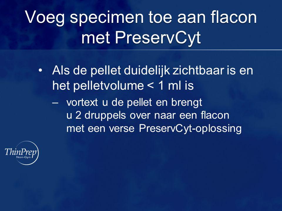 Voeg specimen toe aan flacon met PreservCyt