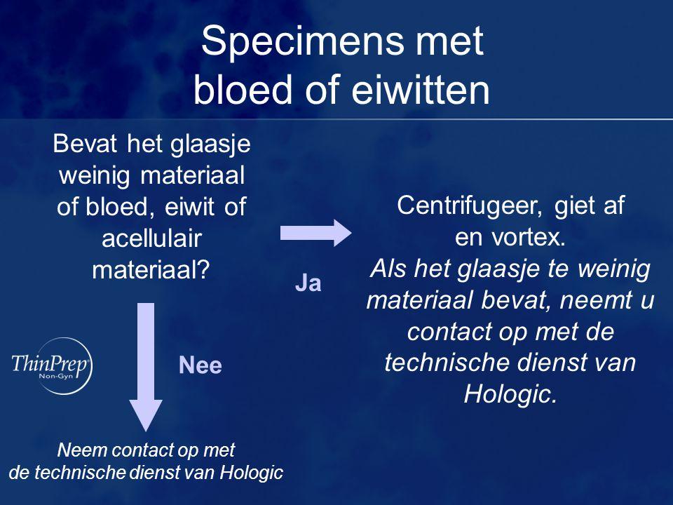 Specimens met bloed of eiwitten Bevat het glaasje