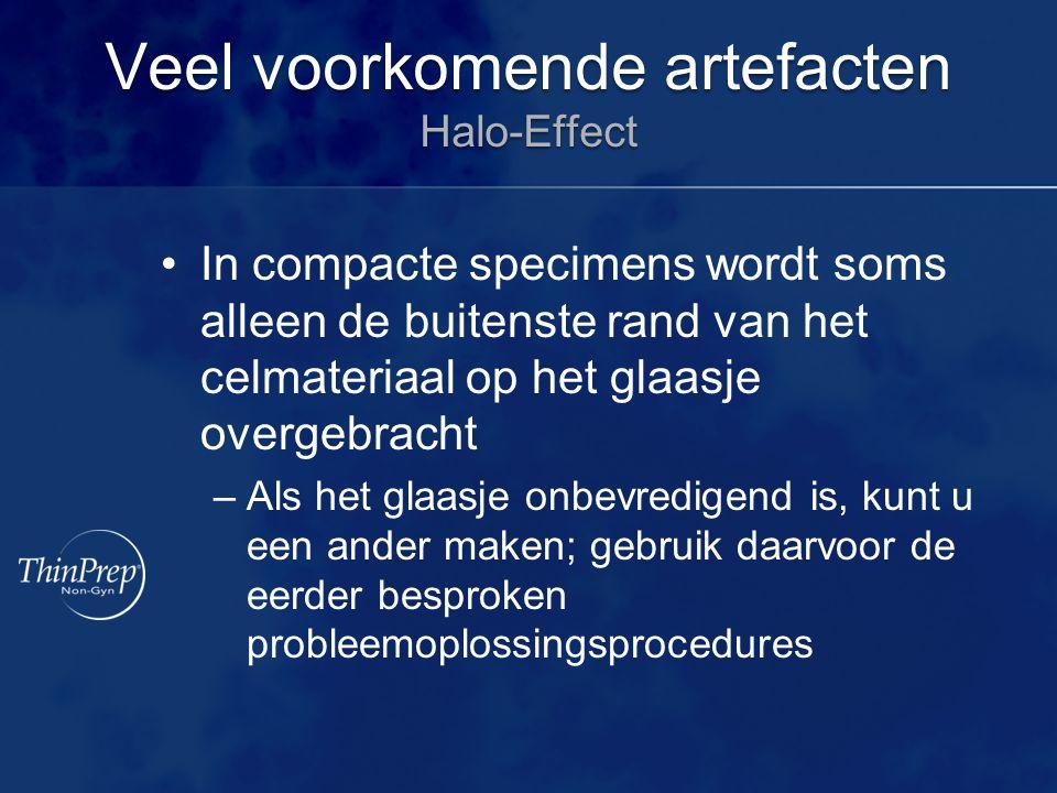 Veel voorkomende artefacten Halo-Effect